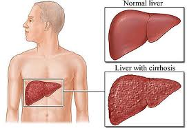 Hepatitisb : Homeopathic treatments at Dr  N K  Jain for